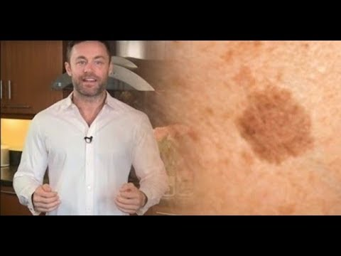 Пигментные пятна на шее лечение