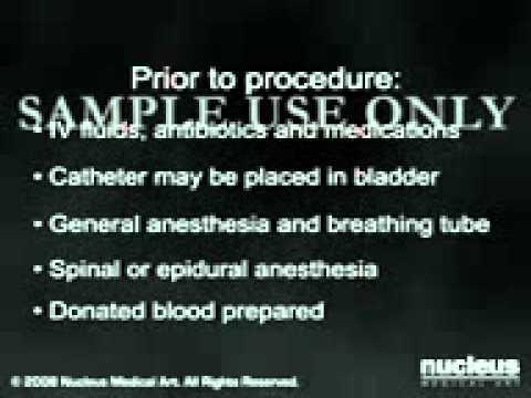 Danni al menisco del ginocchio dei sintomi