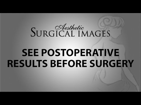 Is computer or 3D imaging utilized to help visualize post-operative results?