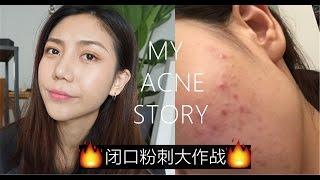 三个月打败!闭口粉刺!my acne story|ANNBITION