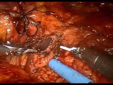 Buccal Mucosa Ureteroplasty and Ureteral Re-implant Surgery