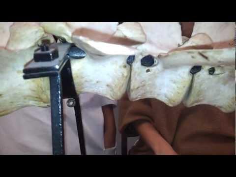 Intraartikuläre Injektionen in das Kniegelenk Kosten