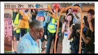 政治揭露#175a 黑衣亂打:市民血流披面/企圖搶槍:香港成為暴徒天堂/何君堯成功清理連儂牆 20190922