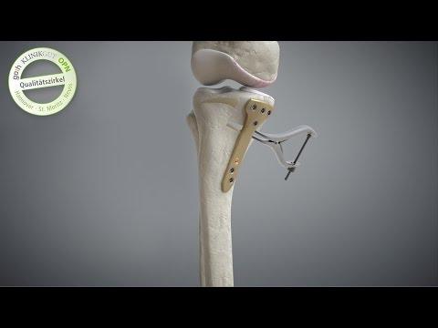 Spinale Behandlungsmethode der japanischen