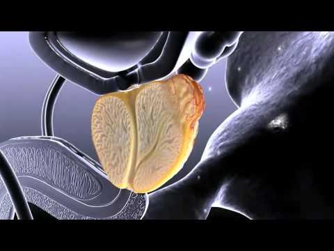 Rundgang durch die Prostata, die ist, wie sie zu behandeln