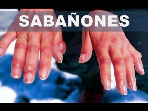 Onihomikoz de las uñas el tratamiento de la foto