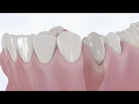 ApaCare Zahncreme - Wirkung und Prophylaxe