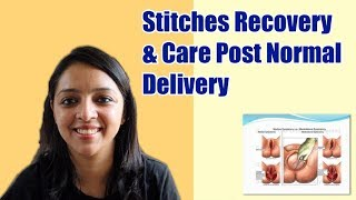 Post Normal Delivery Stitches Recovery & Care Tips
