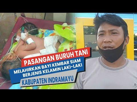 Pasangan Buruh Tani Lahirkan Bayi Laki-Laki Kembar siam Kabupaten Indramayu