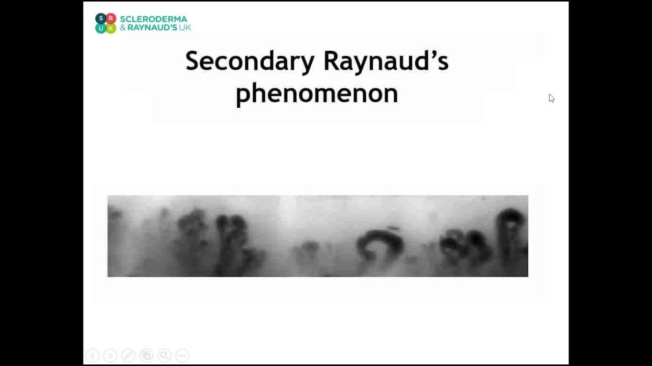 What is Primary and Secondary Raynaud's from a medical point of view?