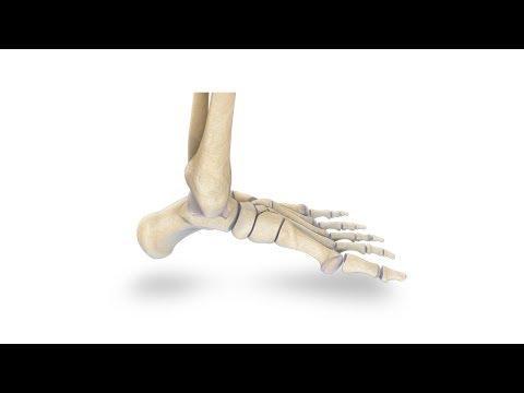 Как разработать голеностопный сустав после перелома