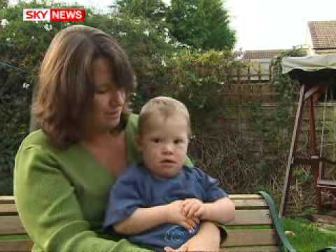 Watch video Down Syndrome unborn babies