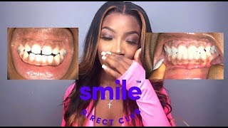 2 Year Smile Direct Club Update   My Teeth Shifted BACK !?   Is It Worth It ??