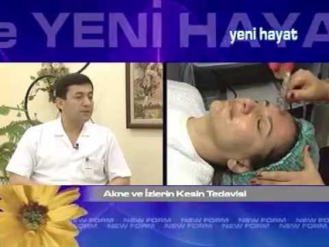 BÖLÜM 46 Dr. Adnan Gürcan Newform ile Yenihayat / AKNE VE İZLERİNİN KESİN TEDAVİSİ