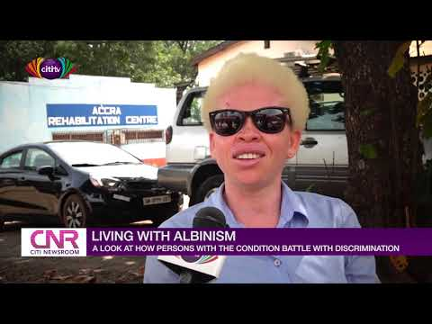 Living with Albinism: A look at how persons living with the condition battle with discrimination