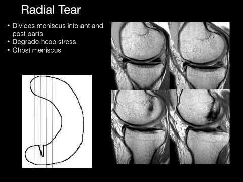 Łąkotki kolanowe - Anatomia i obrazowanie RM
