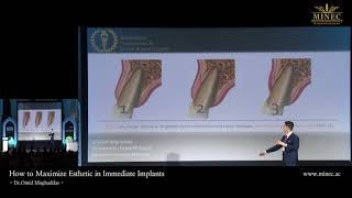[Webinar] Risks in Anterior Implants : How to Prevent Complications