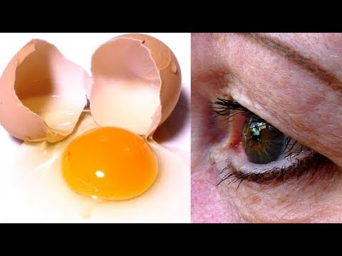 Als das anschwellende Auge nach der Operation zu behandeln