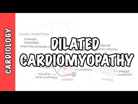 Kardiomiopata rozstrzeniowa (DCM) - przyczyny, patofizjologia i postępowanie