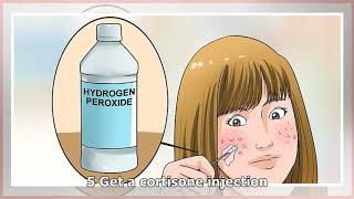 How to Clear up Acne With Hydrogen Peroxide