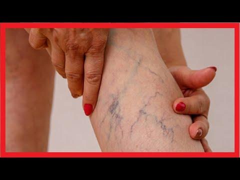 Ulcere cu vene varicoase arată fotografii