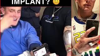 jake paul arm implant reaction - TH-Clip