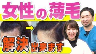 【女性のM字ハゲ】生え際の薄毛は治せる!?発毛技師が改善方法を教えます!