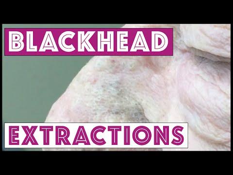 Contagious Blackheads!