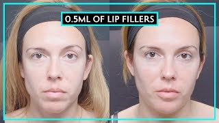 How Much Difference Does 0.5ML Of Lip Fillers Make?