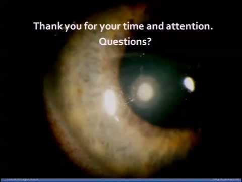Emberi látás, hogyan lehet javítani a látást
