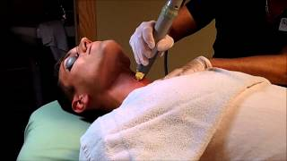 Manscaping - Facial Hair Removal For Men At Rejuv Medical.wmv