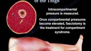 Thigh Compartment Syndrome - Everything You Need To Know - Dr. Nabil Ebraheim
