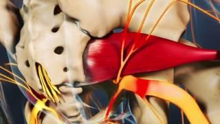Sciatica 2a - Piriformis Syndrome (video)
