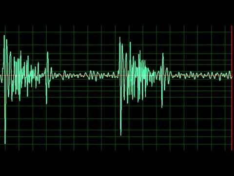 Notfallversorgung für hypertensive Krise Arzt Algorithmus
