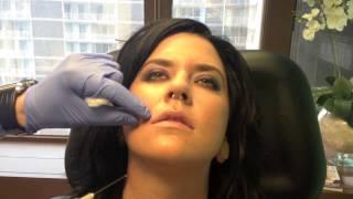 Minimal Pain or Bruise Lip Injection Washington DC Expert Cosmetic Surgeon