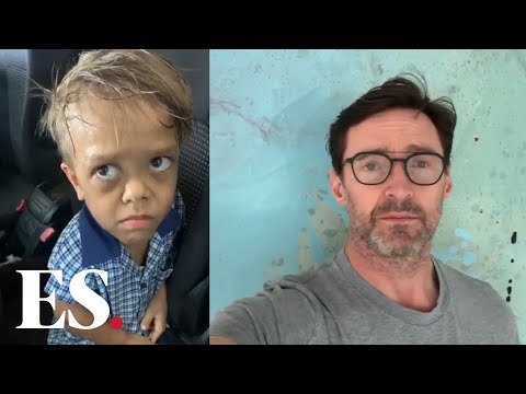Quaden Bayles: Actor Hugh Jackman sends a message.