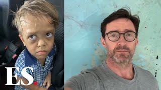 Quaden Bayles: Actor Hugh Jackman Has Sent A Message Of Public Support To The Australian Boy