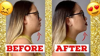 ✨ DOUBLE CHIN GONE !!! ✨CHIN LIPO BEFORE AND AFTER | CHIN LIPO UPDATE REVIEW