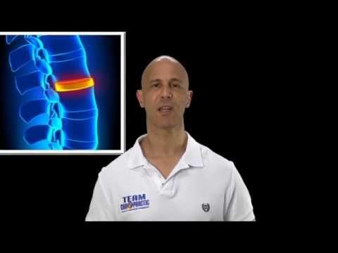 Quello che è osteochondrosis di 1 laurea di reparto cervicale e lombare