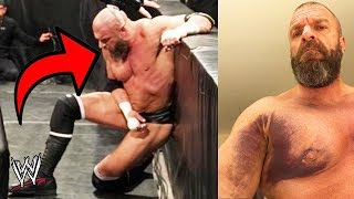 10 WORST WWE Wrestling Injuries Caught on Camera!