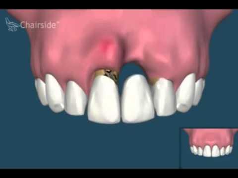 Замещение отсутствующего зуба. Мост или имплантат
