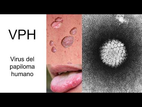 Wart treatment cantharidin