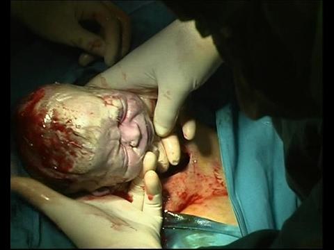 La cirugía endoscópica en la próstata
