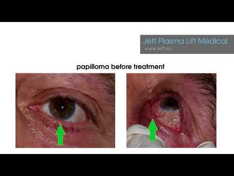 preview of Papilloma - odstranění