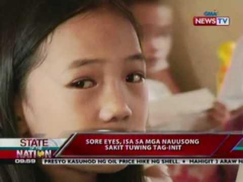 Kaysa ito ay posible upang makakuha ng mapupuksa ang makulay stains