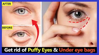 How to Get rid of Puffy Eyes and Under eye bags in 2 weeks. Facial Exercises & Lymphatic Eye Massage