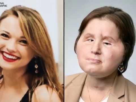 Американка стала самой молодой женщиной в мире, которой сделали пересадку лица