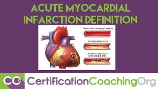 ICD-10 Subsequent Acute Myocardial Infarction Definition