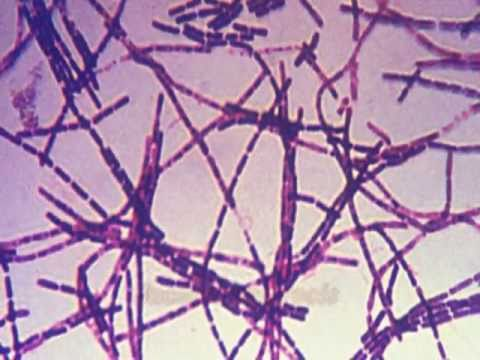 symtomps and causes of bacillus anthracis essay B anthracis is a very rare bacterium, and it causes disease infrequently it is present naturally in both wild and domestic animals and in soil, particularly where an infected animal has died or been killed.