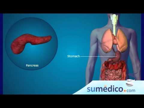 Diabetes fructosa y dependientes de la insulina